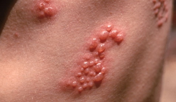 Effective Relief From Shingles